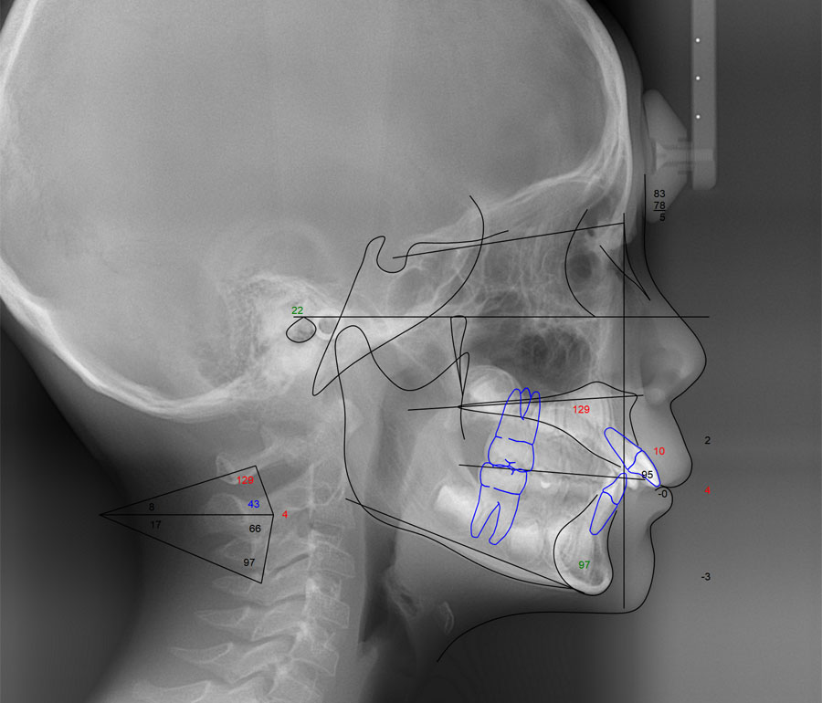 頭部X線規格写真